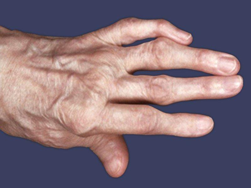 Аллергический Артрит Причины