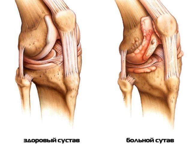Обычно заболевание поражает какой-то один сустав (моноартрит), но может затронуть и целые группы (полиартрит)