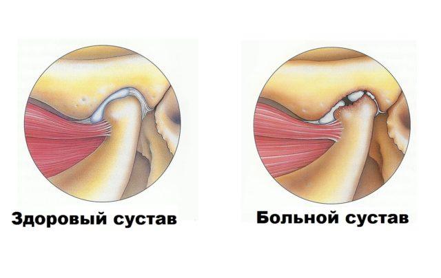Артрит ВНЧС может иметь острый или хронический характер течения