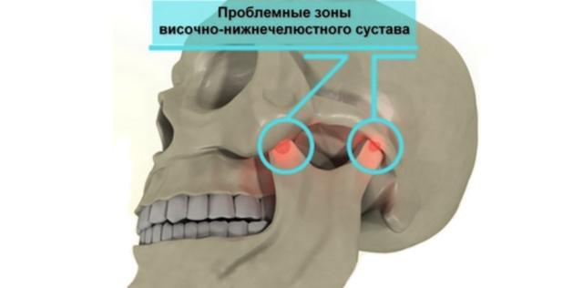 Артрит ВНЧС – острое или хроническое воспаление структурных элементов височно-нижнечелюстного сустава, сопровождающееся нарушением его функции