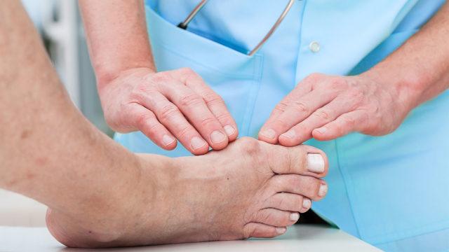 Постепенно боль с большого пальца ноги распространяется на всю стопу и доставляет немало хлопот