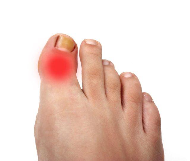Самым распространенным является артрит большого пальца, в последствии которого может появиться шишка на большом пальце стопы