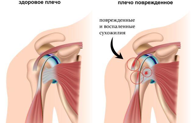Плечевой сустав – самый подвижный в человеческом организме