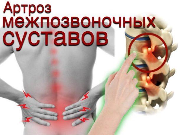 Травмирование позвоночника ускоряет естественный процесс изнашивания суставов