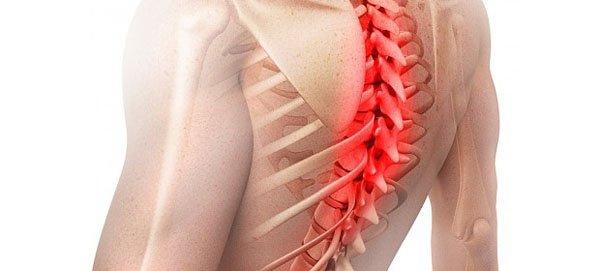Усилению болевых синдромов способствует образование костных отростков — остеофитов