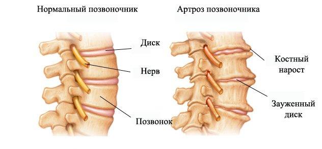 Эта дегенеративная болезнь является одним из видов остеоартрозной группы, приносящая разрушительные изменения в суставах