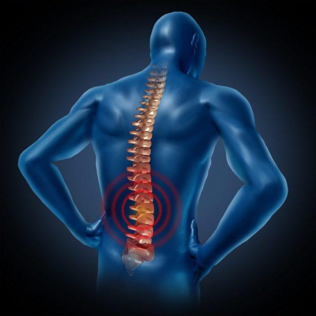 Вовлечение в процесс грудного отдела позвоночника приводит к нарушению движения ребер, что приводит к дыхательной недостаточности
