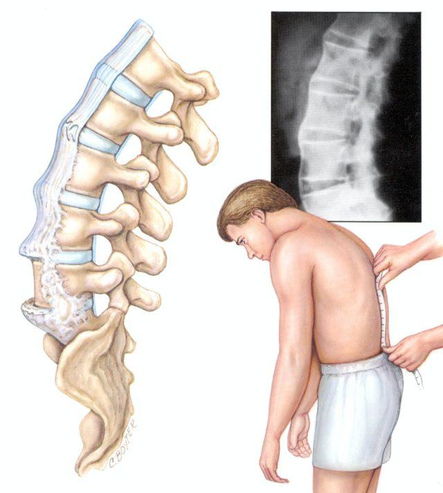 При осмотре пациента лежащего на животе производится поколачивание в области крестцово-подвздошных сочленений, боль в этой области указывает на наличие воспаления