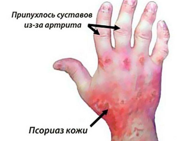 По статистике, хроническое поражение суставов наблюдается у 5 – 7% больных псориазом