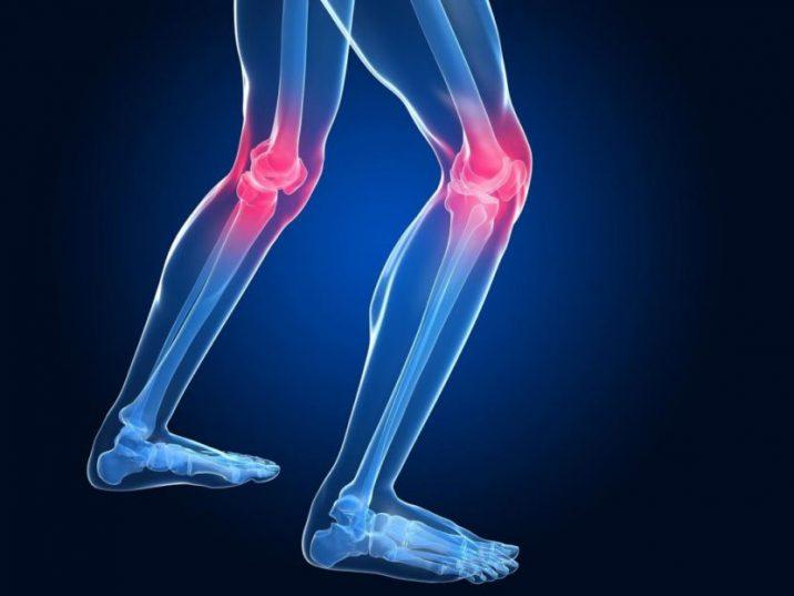 Изображение - Гонартроз коленного сустава диета и лечение питание Dieta-pri-artroze-kolennogo-sustava-9-e1526493680255-716x537