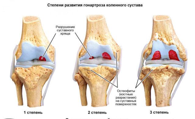 Чаще всего отмечается периодическая, умеренной интенсивности и быстро проходящая боль в колене в конце рабочего дня