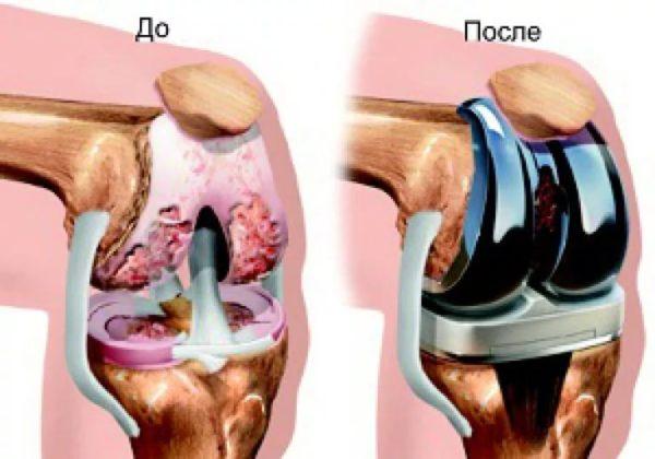 При развитии болезни из-за хронического воспаления может развиваться контрактура – фиксация сустава в определенном положении, когда функция колена полностью или почти полностью утрачивается