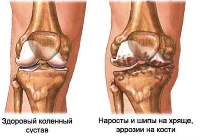 Хрящ постепенно истончается и разрушается, а вслед за ним начинают страдать суставные поверхности кости
