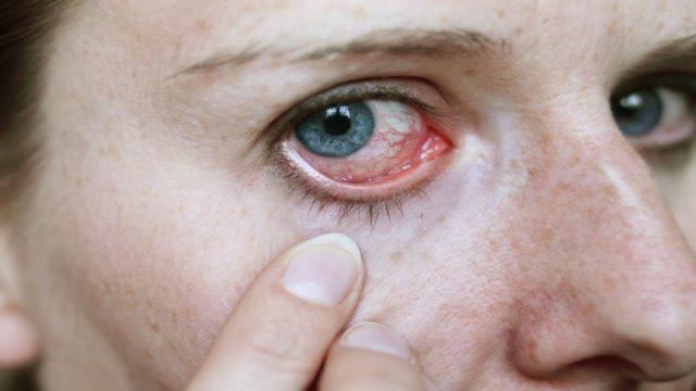 Поражение нервной системы вызывает радикулиты, периферические полинейропатии, энцефалопатию