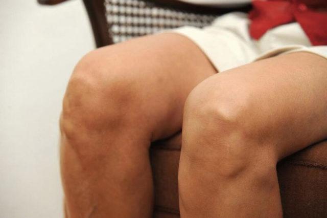 Боли в суставах ограничивают ваши движения и полноценную жизнь