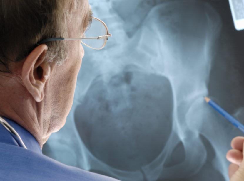 Симптомы и лечение артрита тазобедренного сустава