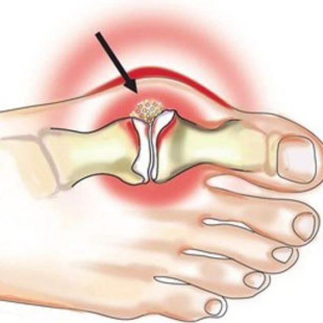 В основе лежит симптоматическое лечение и поддерживающая терапия, направленные на устранение симптомов артроза