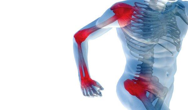 Лечение артроза суставов направленно на прекращение прогрессирования заболевания, уменьшение боли, предотвращение осложнений