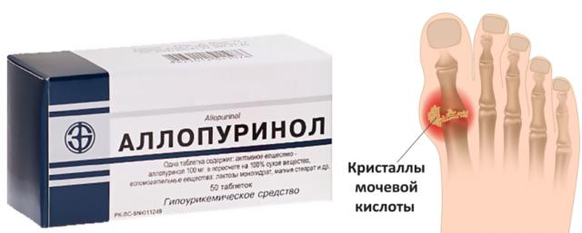 Подбор лекарственных средств и их дозировку устанавливают в каждом конкретном случае индивидуально