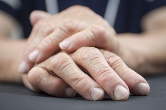 Только комплексный подход к лечению, включающий в себя противовоспалительную терапию, местные воздействия, диету и медикаментозные препараты, влияющие на метаболизм мочевой кислоты, может помочь в борьбе с подагрическим артритом