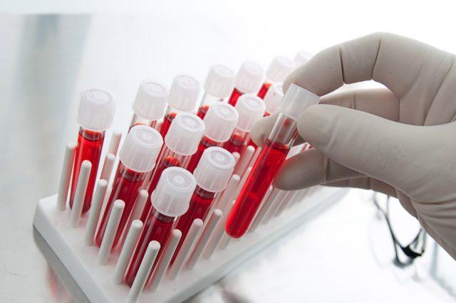 Анализ крови покажет повышение уровня мочевой кислоты
