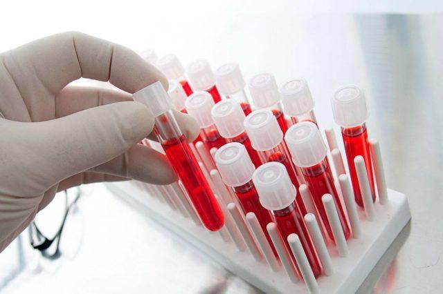 Дополнительно может назначаться тест на определение ревматоидного фактора в крови
