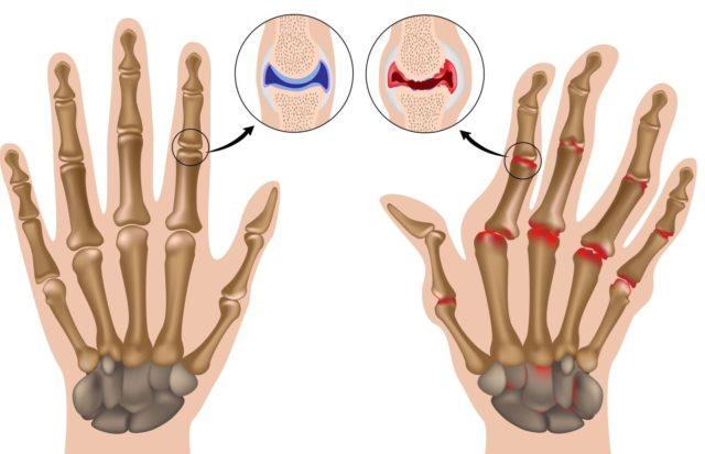 Течение ревматоидного артрита чаще всего носит прогрессирующий характер