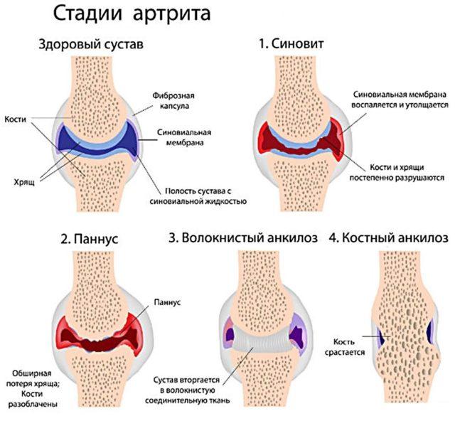 Ревматоидный артрит – это всегда серьезный диагноз
