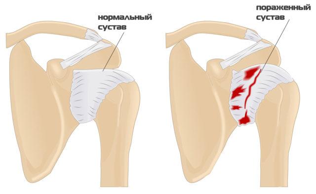 Сустав, пораженный этим заболеванием, теряет способность к нормальному функционированию