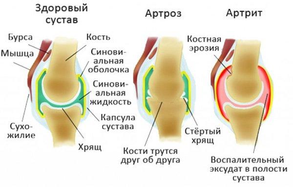 Причиной развития болезни являются различные факторы