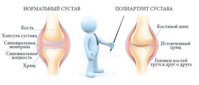 В результате происходит постепенное разрушение костной ткани и нарушения двигательной функции