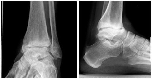 Артроскопия с проведением биопсии суставных тканей