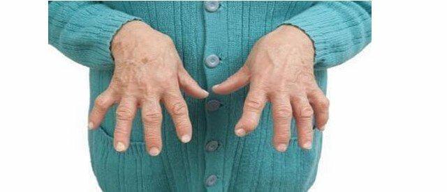 Для артритов суставов характерны изменения в синовиальной оболочке и нарушение кровообращения