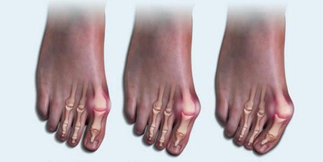 В клинической практике все артриты стопы, включающие в себя порядка 100 различных патологий, принято разделять на 2 большие группы