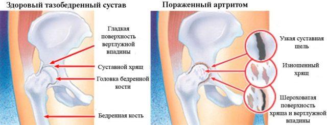 В отличие от дегенеративных патологий (артрозов) воспалительный процесс возникает в выстилающей суставную полость оболочке