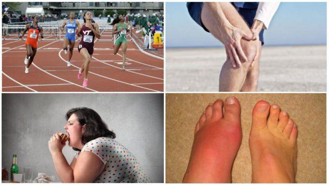 У спортсменов и танцоров, при физической работе нагрузка на ноги больше, а значит, костные сочленения изнашиваются быстрее
