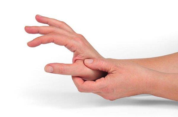 Проявления артроза большого пальца руки различаются на стадиях развития заболевания