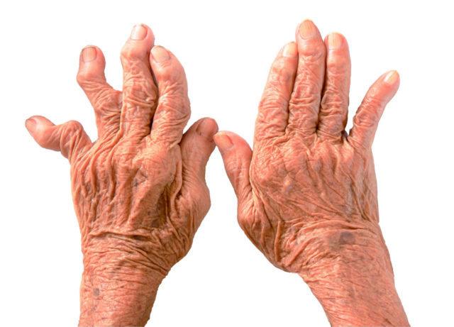 При ризартрозе большого пальца руки лечение нужно начинать как можно раньше, на первых стадиях заболевания