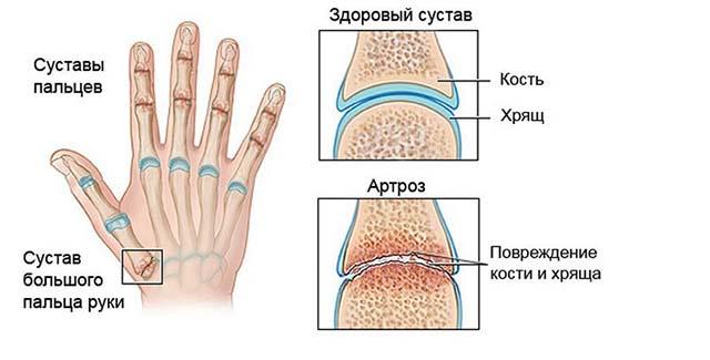 К артрозу часто приводит нарушение синтеза хрящевой ткани, которое может быть обусловлено генетически, спровоцировано перенесенной болезнью или возрастными изменениями