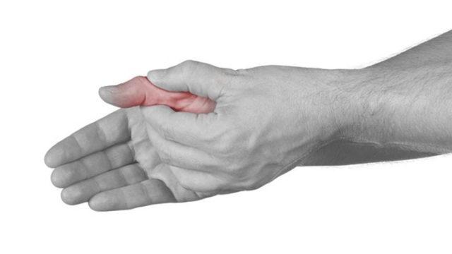 Развитие ризартроза большого пальца начинается с истончения хрящевой ткани сустава