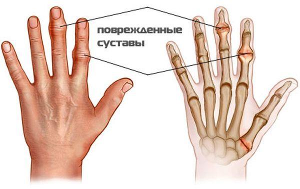Артроз большого пальца руки возникает из-за истончения хрящевой ткани, участвующей в образовании соединения