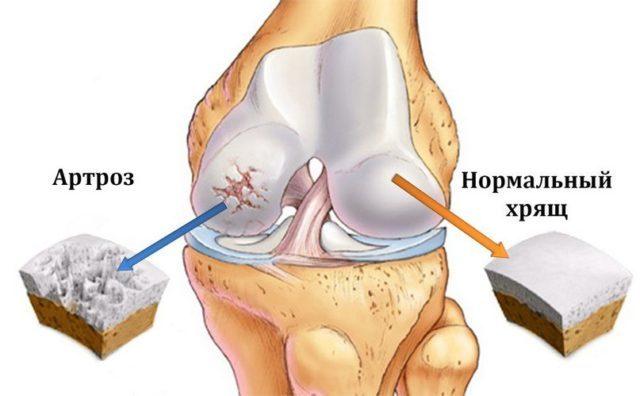 Хрящевая ткань с годами изнашивается, вызывая изменения в суставе