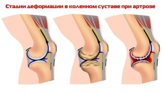При артрозе коленного сустава 2 степени симптомы выражены более ярко