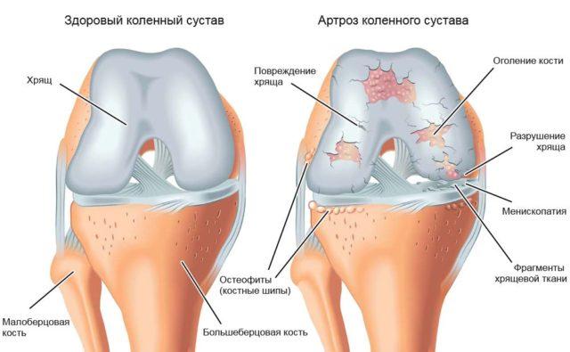 По тяжести течения, заболевание находится на втором месте после коксартроза