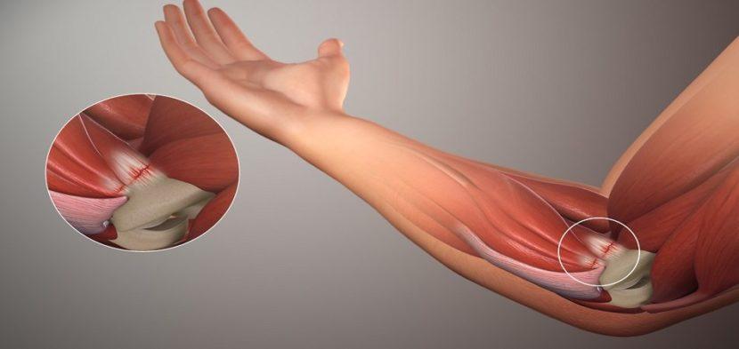 Артроз локтевого сустава - что это за патология лечение причины