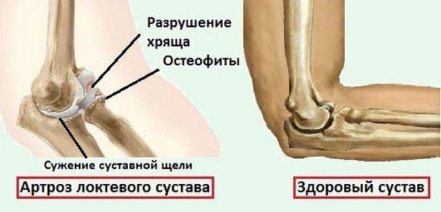 Чаще всего артроз поражает локтевой сустав, как самый важный аппарат жизнедеятельности рук