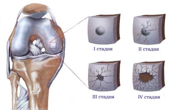 Стоит учитывать, что некоторые специалисты используют нулевую стадию деформирующего остеоартроза