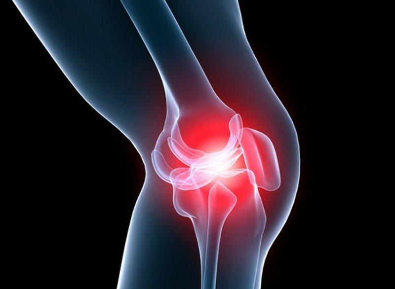 Деформирующий остеоартроз и его степени можно ли уберечься