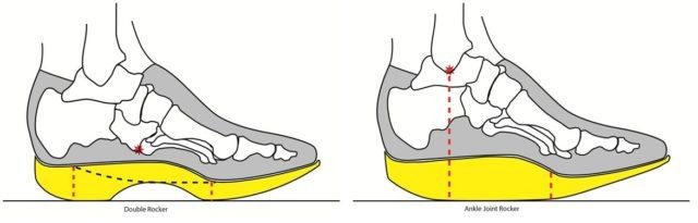 Обеспечить правильное анатомическое положение при врождённых аномалиях или при сложном деформирующем артрозе