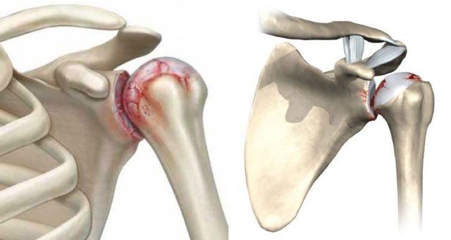 Воспалительный процесс во время артроза называется синовит